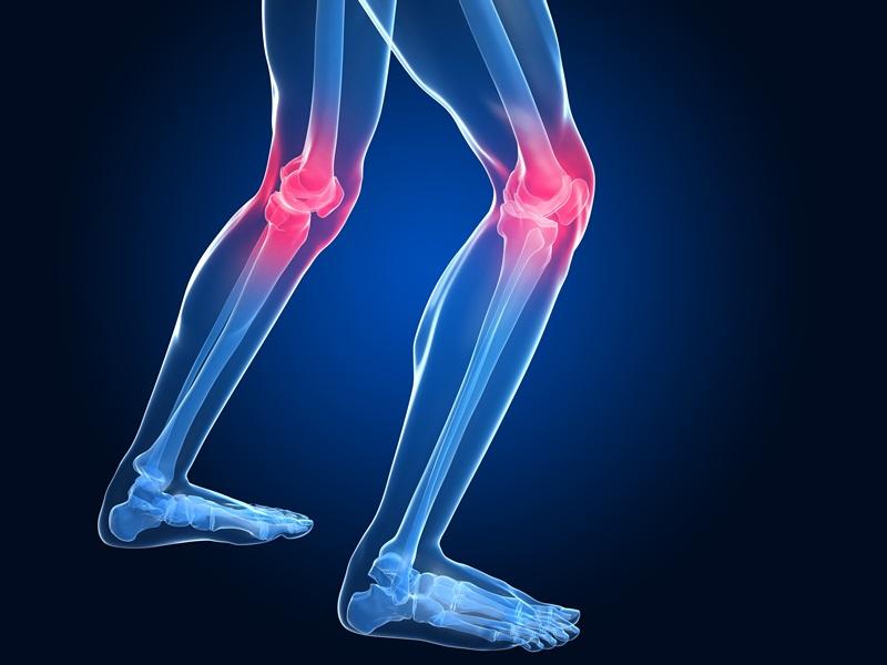 Что такое артрит нижних конечностей?