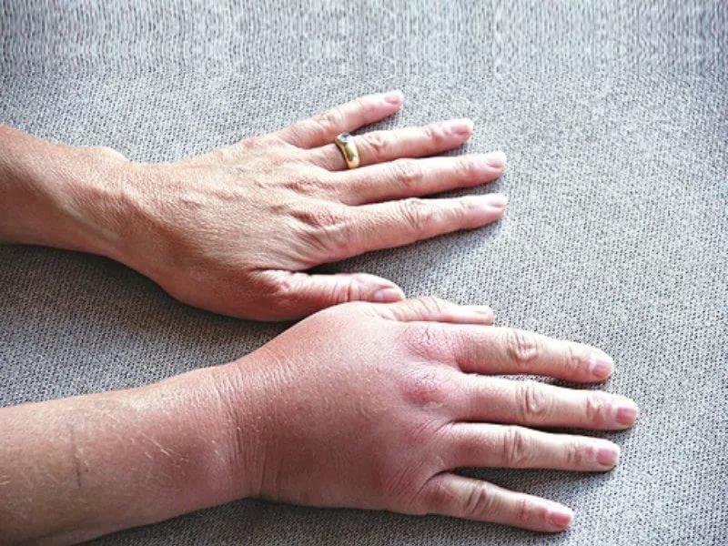 Что собой представляет артрит верхних конечностей?