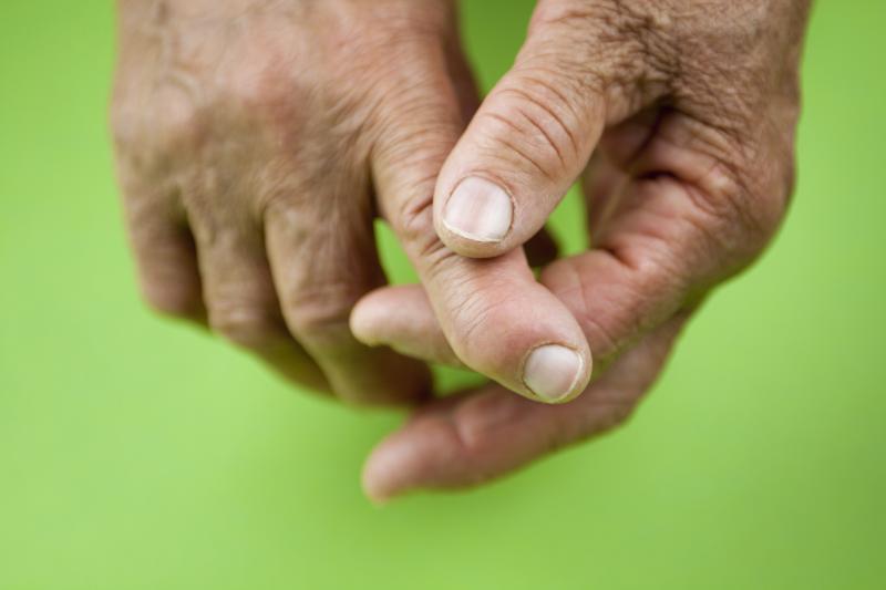 Что такое артроидный артрит?