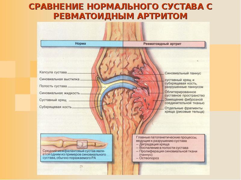 Что такое аутоиммунный артрит?