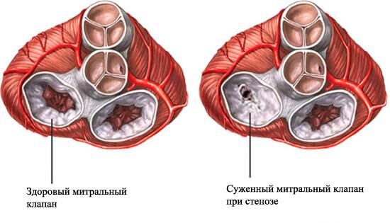 бициллинопрофилактика при ревматизме проводится в течение