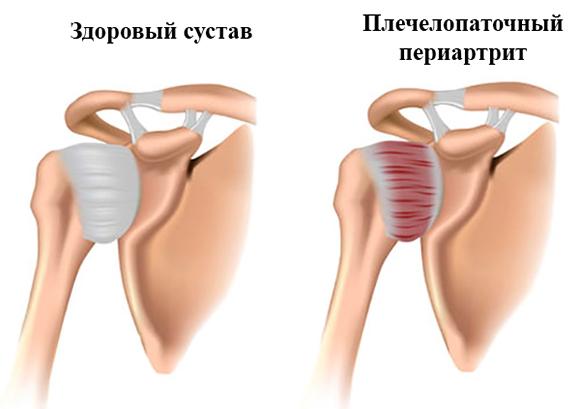 доктор попов плечелопаточный периартрит видео упражнения