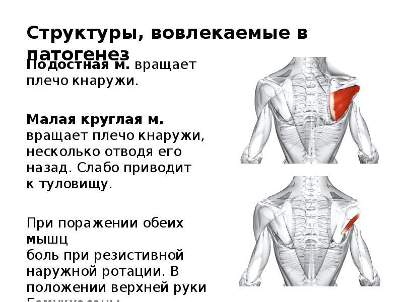 долгое восстановление плечелопаточном периартрите отзывы