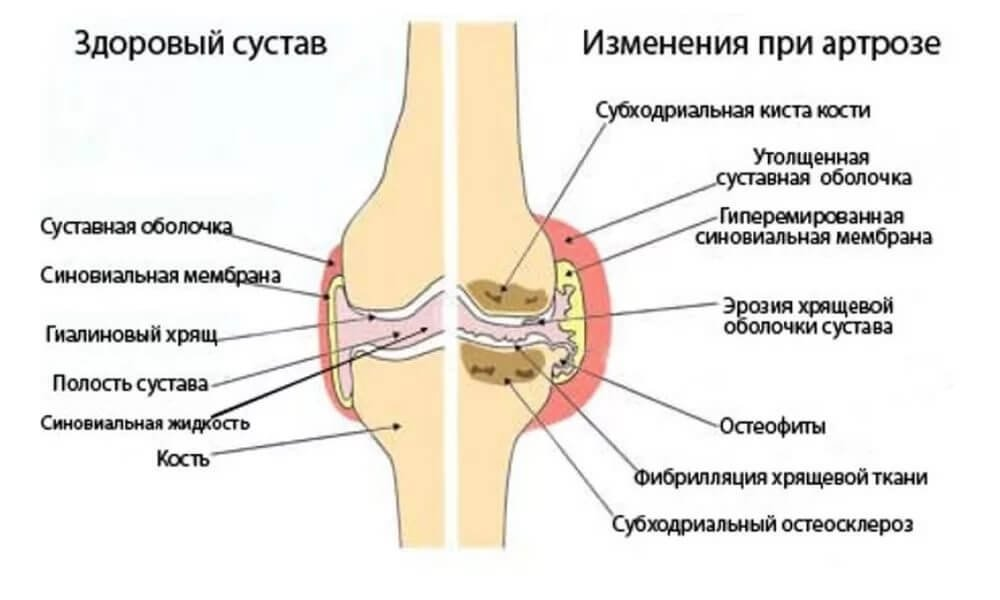 эффективное лечение суставов синовита артрита и артроза