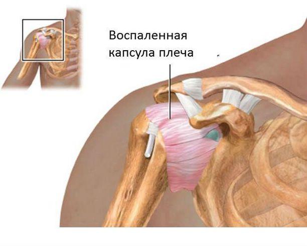 гимнастика плечелопаточный периартрит доктор евдокименко