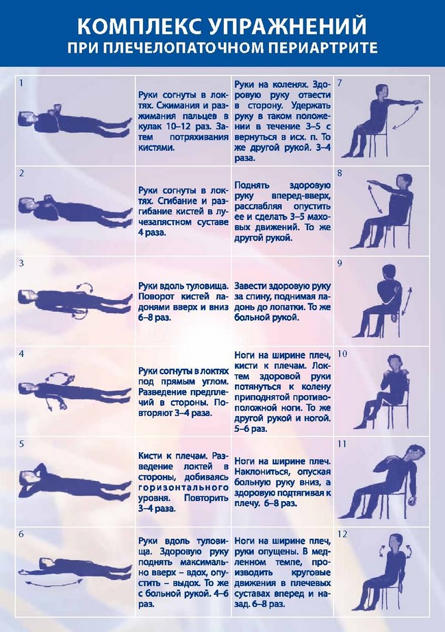 гимнастика при плечелопаточном периартрите по методу попова