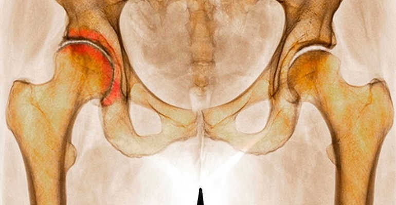 лечение коксартроза тазобедренного сустава без операции