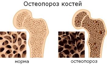 лечение остеопороза народными средствами самые эффективные