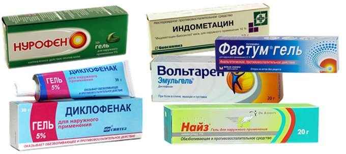 лечение плечелопаточного периартрита медикаментозно в домашних условиях
