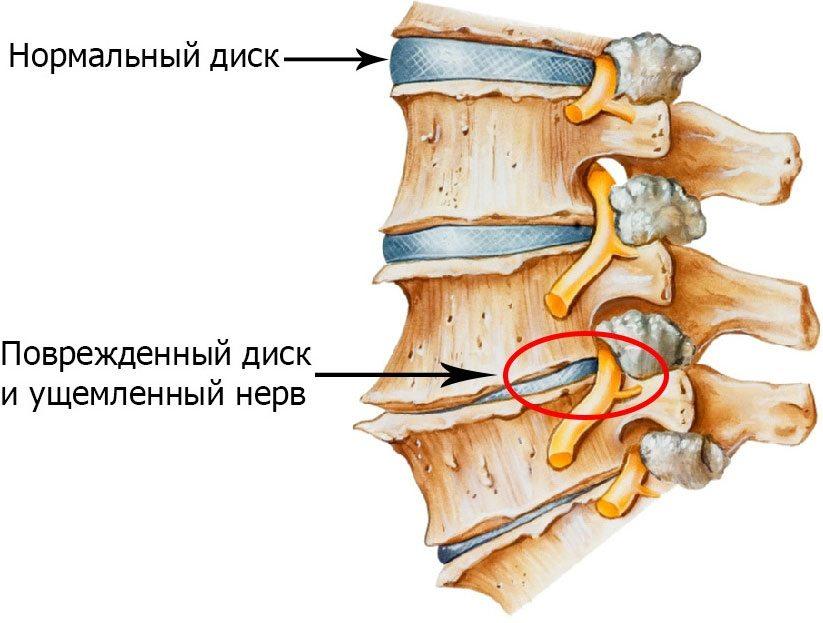 лфк при остеохондрозе шейно грудного отдела позвоночника