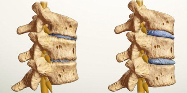 лфк при плечелопаточном периартрите комплекс упражнений