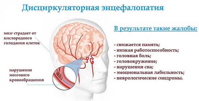нарушение мозгового кровообращения при шейном остеохондрозе
