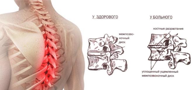остеохондроз грудного отдела позвоночника симптомы у мужчин