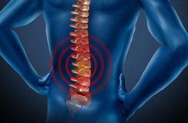 остеохондроз поясничного отдела лечение в домашних условиях