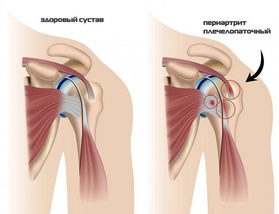 периартрит плечевого сустава лечение народными средствами