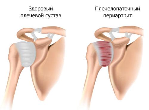 плечелопаточный периартрит комплекс упражнений попова отзывы
