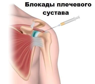плечелопаточный периартрит лечение медикаментозное симптомы