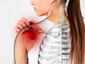 плечелопаточный периартрит симптомы и лечение в домашних