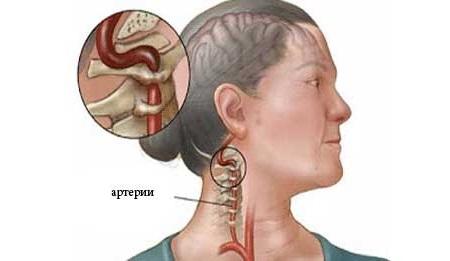 синдром позвоночной артерии при шейном остеохондрозе лечение
