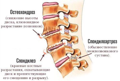 синдром позвоночной артерии при шейном остеохондрозе симптомы