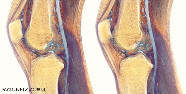 синовит коленного сустава стандарт оказания медицинской помощи