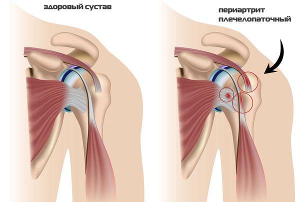 ударно волновая терапия при плечелопаточном периартрите