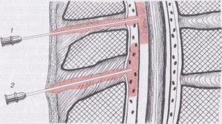 уколы при остеохондрозе поясничного отдела позвоночника