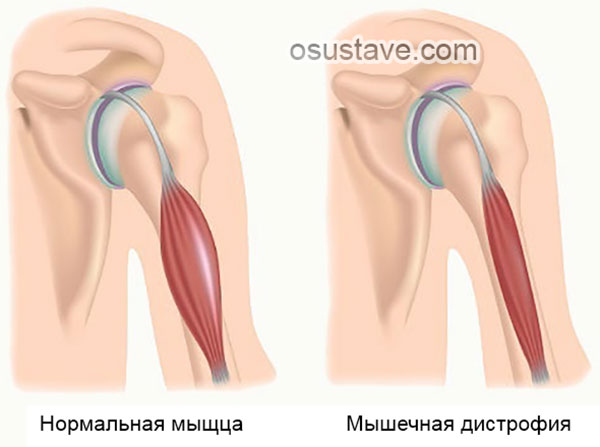 упражнения попова для лечения плечелопаточного периартрита