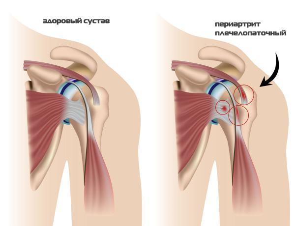 зарядка при плечелопаточном периартрите по методу попова
