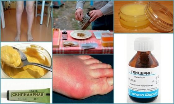 артрит лечение народными средствами в домашних условиях