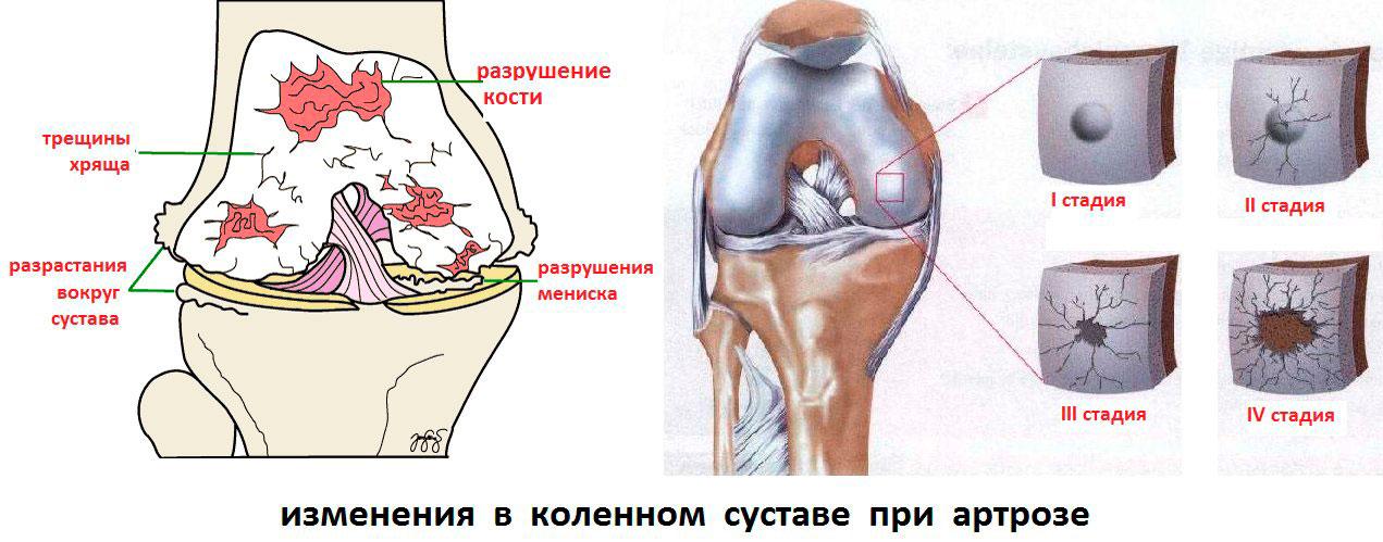 артроз коленного сустава лечение народными средствами