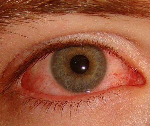 болезнь бехтерева это аутоиммунное заболевание или нет