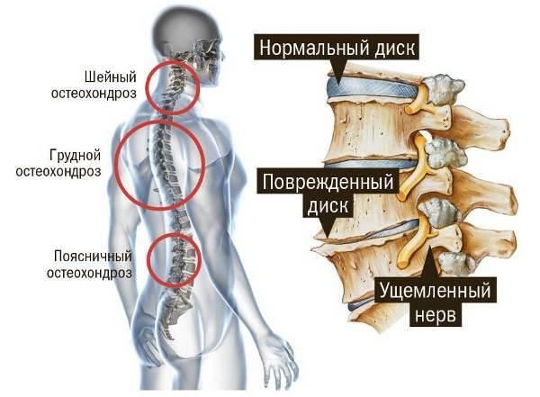 грудной остеохондроз симптомы ощущение боль в грудине