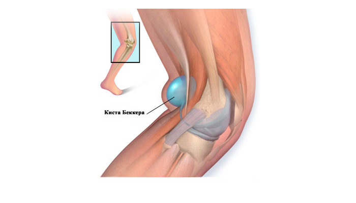 лечение бурсита коленного сустава в домашних условиях