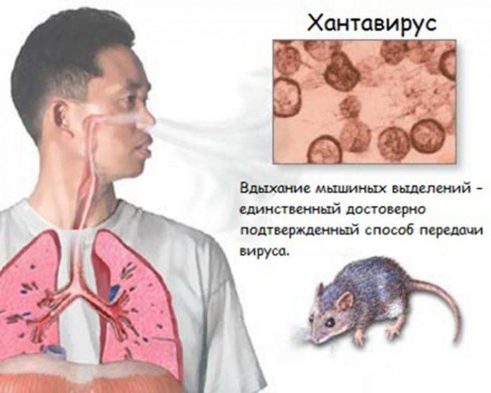 новый вирус в китае 2020 хантавирус