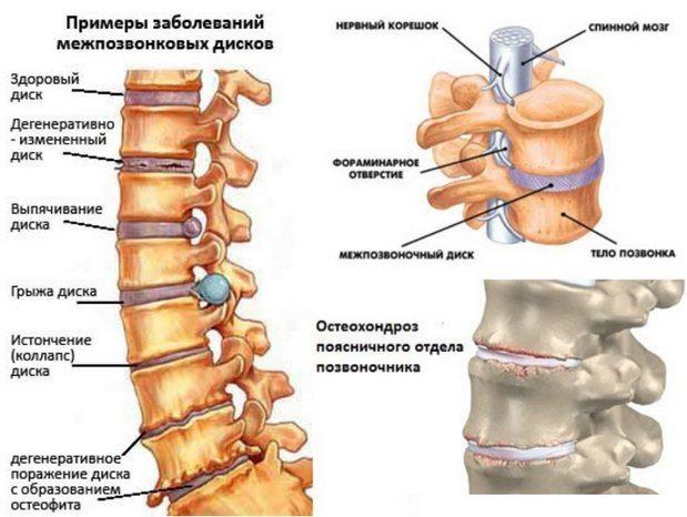 остеохондроз 2 степени поясничного отдела позвоночника