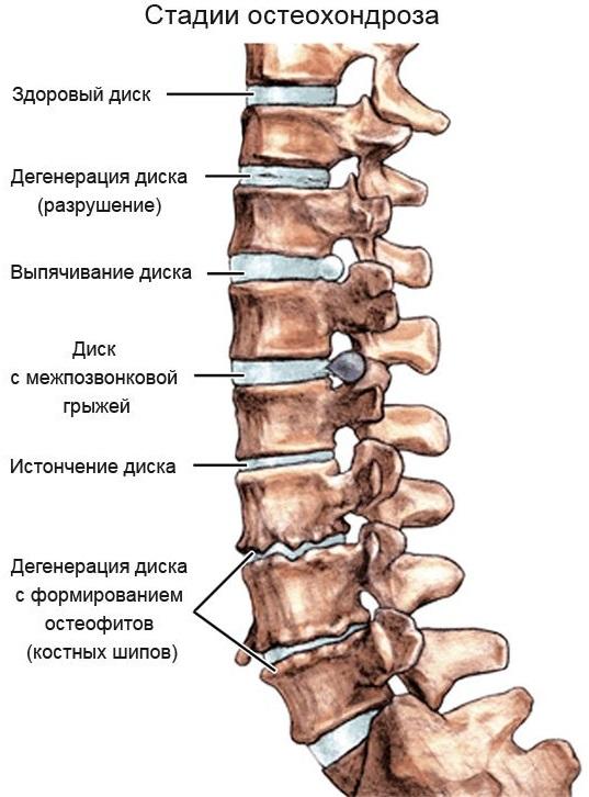остеохондроз грудного отдела симптомы у женщин лечение
