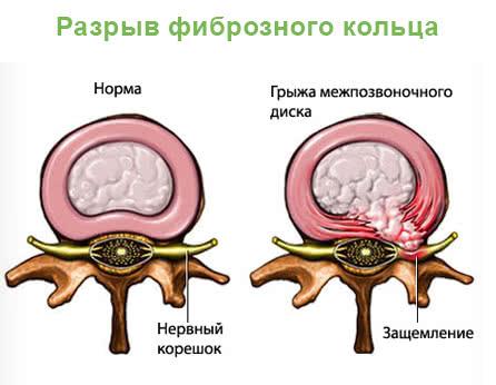 остеохондроз крестцового отдела позвоночника лечение