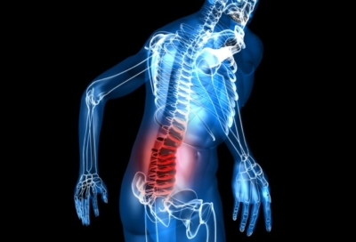 остеохондроз пояснично крестцового отдела позвоночника