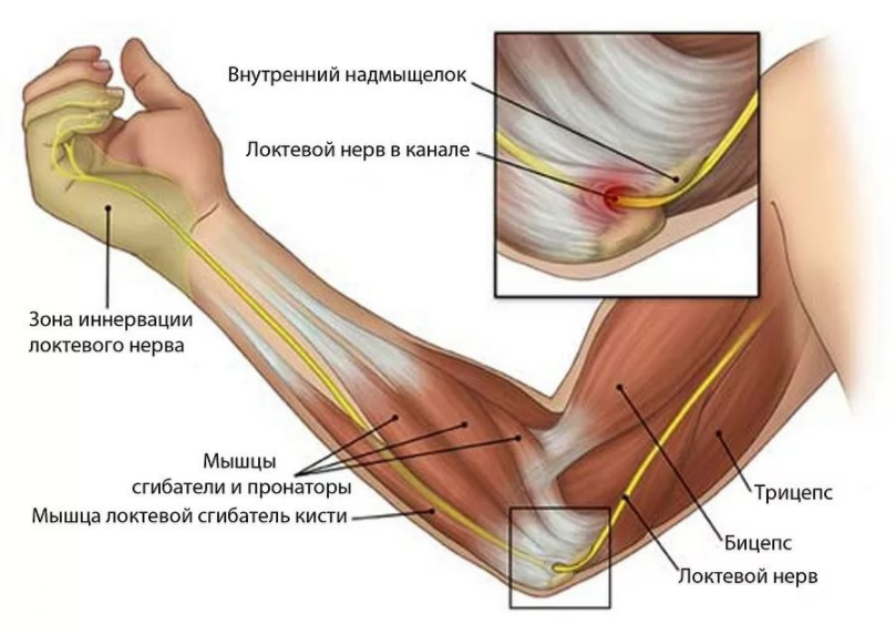 периартрит локтевого сустава симптомы и лечение фото