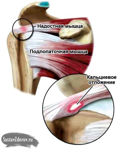 плечелопаточный периартрит правого плечевого сустава