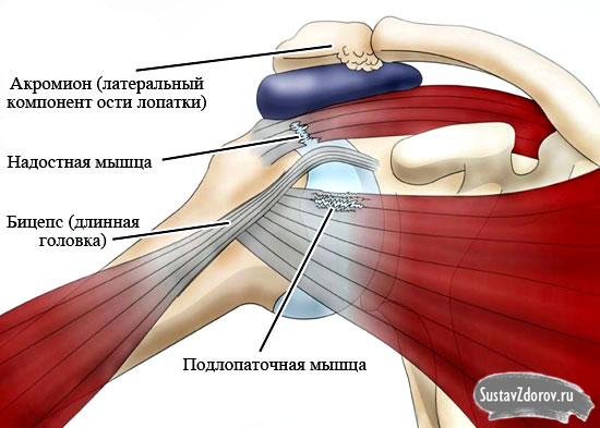 плечелопаточный периартрит рентгенологические признаки